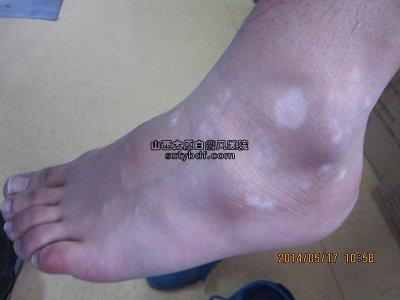孩子脚上有白斑
