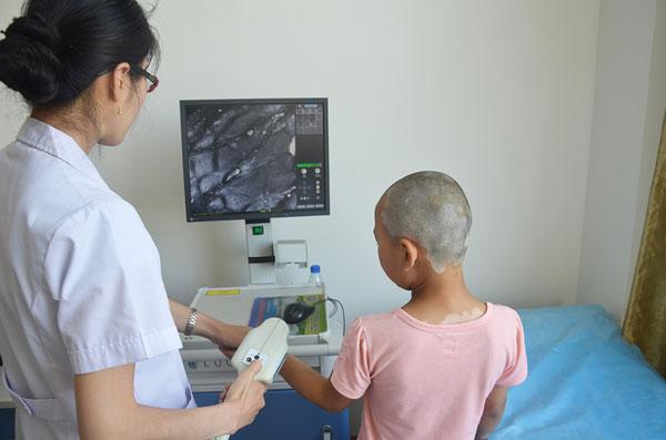 山西太原白癜风医院皮肤CT检查