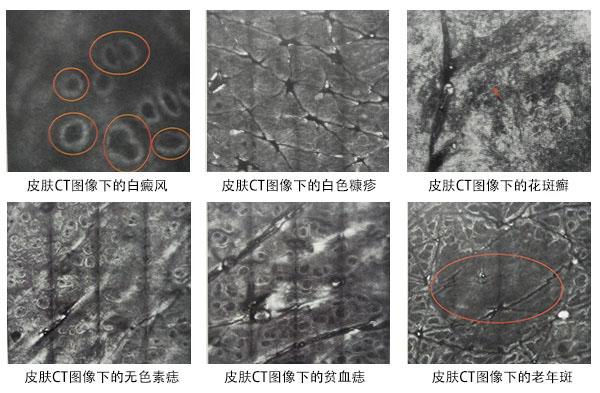 不同白斑病在皮肤CT下的成像
